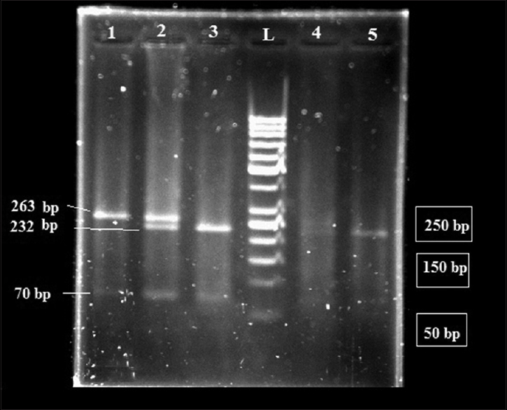 Figure 1: Gel electrophoresis of <i>CYP1A1</i> (M2) polymerase chain reaction products after digestion by <i>NcoI</i> enzyme. L shows the 50 bp DNA marker, No. 1 is mutant type of <i>CYP1A1</i> (M2) polymorphism (GG) (263 and 70 bp), No. 2 and 4 are the heterogeneous type of <i>CYP1A1</i> (M2) polymorphism (AG) (263, 232, 70and 31 bp), and No. 3 and 5 are the wild-type (AA) (232, 70and 31 bp) in different study groups